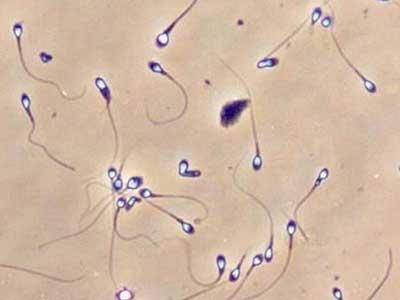 Агглютинация сперматозоидов 1