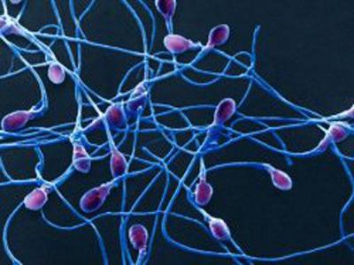 Причины и методы лечения некрозооспермии