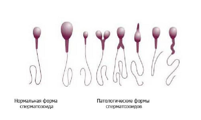 Результаты спермограммы
